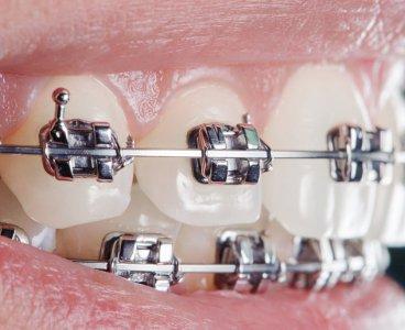 Ortodonti Nedir? (Diş teli tedavisi)