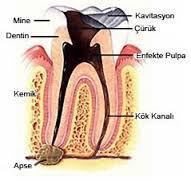 Diş pulpası nasıl iltihaplanır?