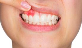 Periodontoloji nedir?