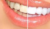 Diş beyazlatma (Bleaching) nedir ?
